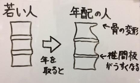 背骨の変形のイメージ