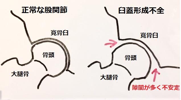 股関節の解説図